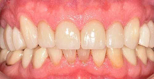 Ceramic Crowns After