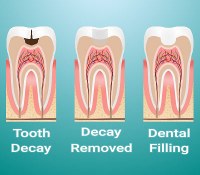 Dental Fillings Woodland CA
