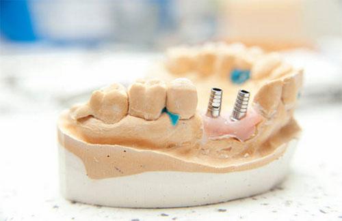Dental Implants Woodland CA